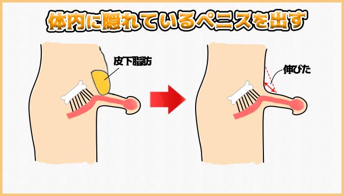 下腹部脂肪吸引式長茎術の図