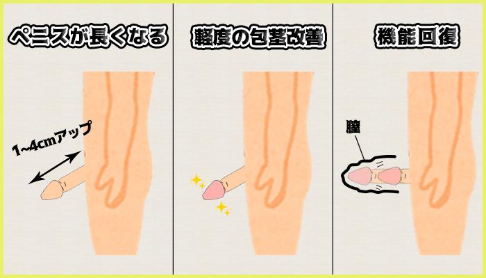 長茎術の3つの長所の図